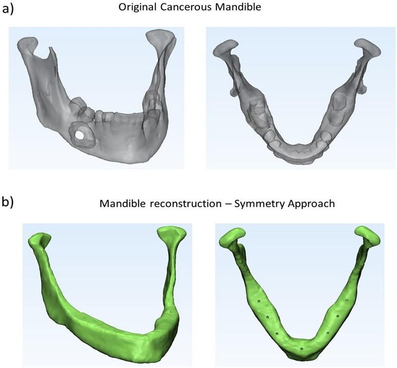 Customised Design Of A Patient Specific 3d Printed Whole Mandible