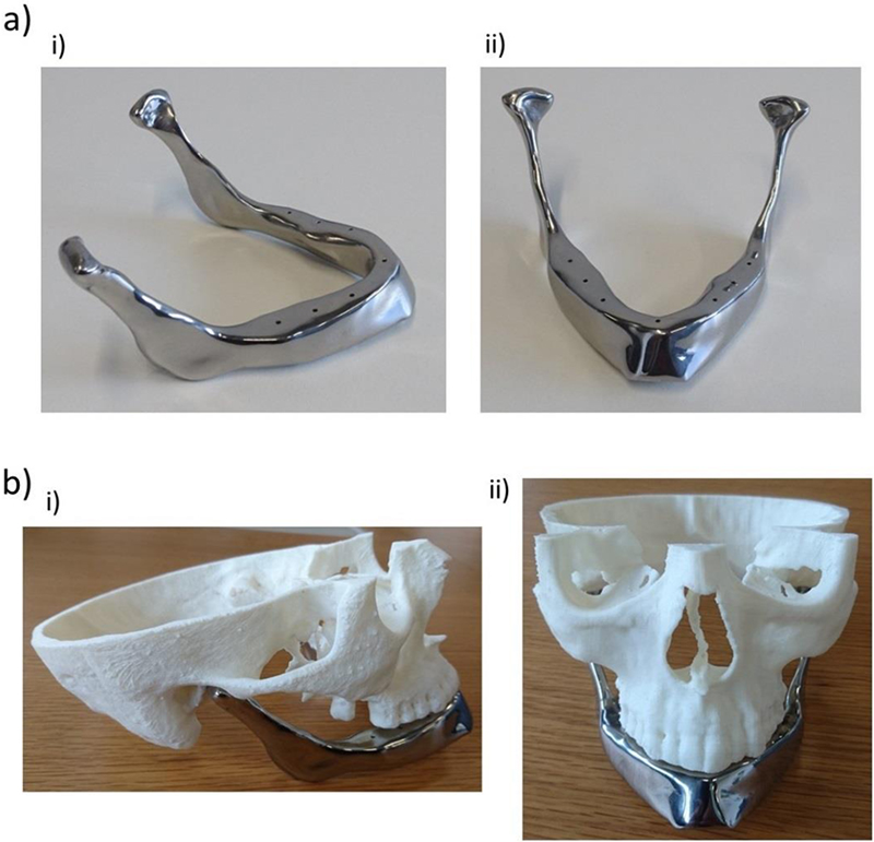 Customised Design Of A Patient Specific 3D Printed Whole