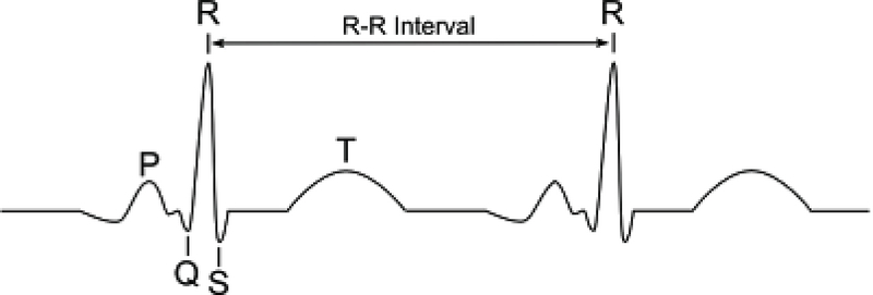 Premature Ventricular Contraction (PVC) Detection Using R Signals